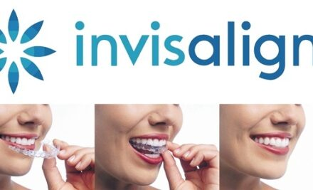 Invisalign® the Gold Standard for Clear Braces