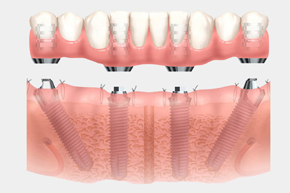dental-views-FOUR-1b