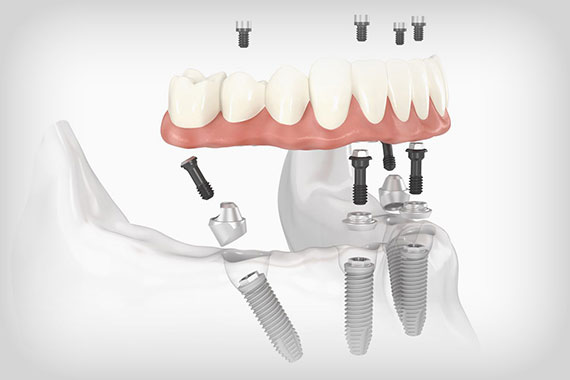 dental-views-FOUR-3