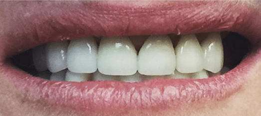 Implant Supported Denture In CA & AZ - After Treatment