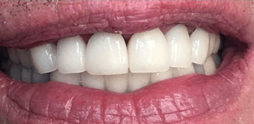 Low Cost Dental Implants In Arizona & California - After Treatment