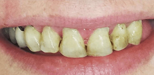 Implant Supported Denture In CA & AZ - Before Treatment
