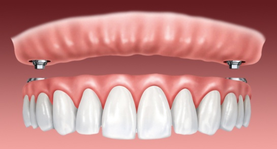 Implant Supported Denture In Az & CA
