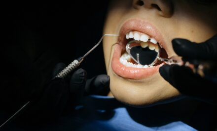 Dental Sealants Could Mean Less Cavities